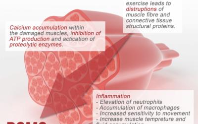 PNF e DOMS: effetti dello stretching sul dolore muscolare ad insorgenza ritardata.