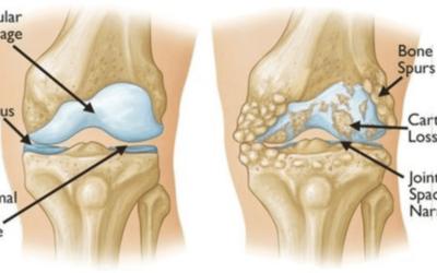 Rinforzo del quadricipite e degli abduttori dell'anca per prevenire l'artrosi al ginocchio